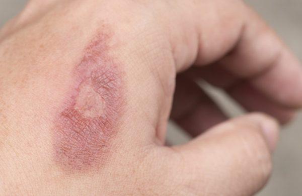 Tipos de feridas na pele: aprenda quais são e como tratá-las