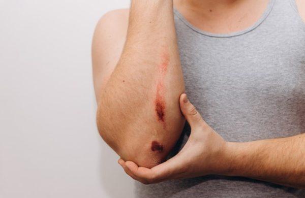 Cicatrização de feridas: entenda como funciona cada fase do processo
